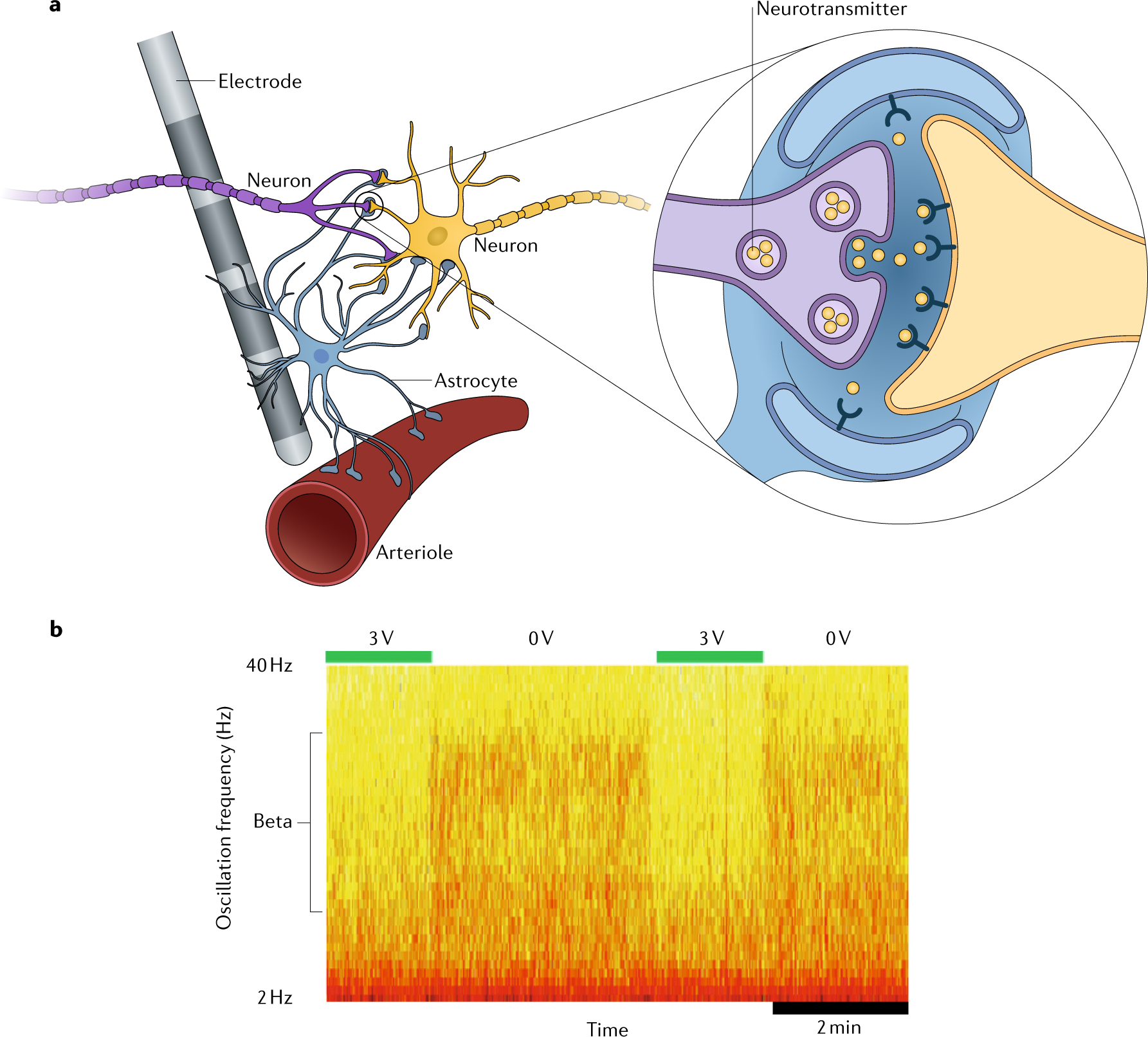 Deep brain stimulation: current challenges and future directions