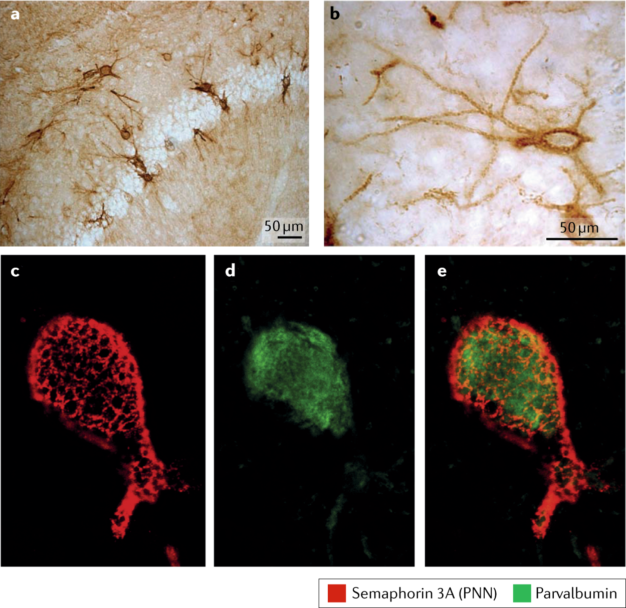 The roles of perineuronal nets and the perinodal extracellular