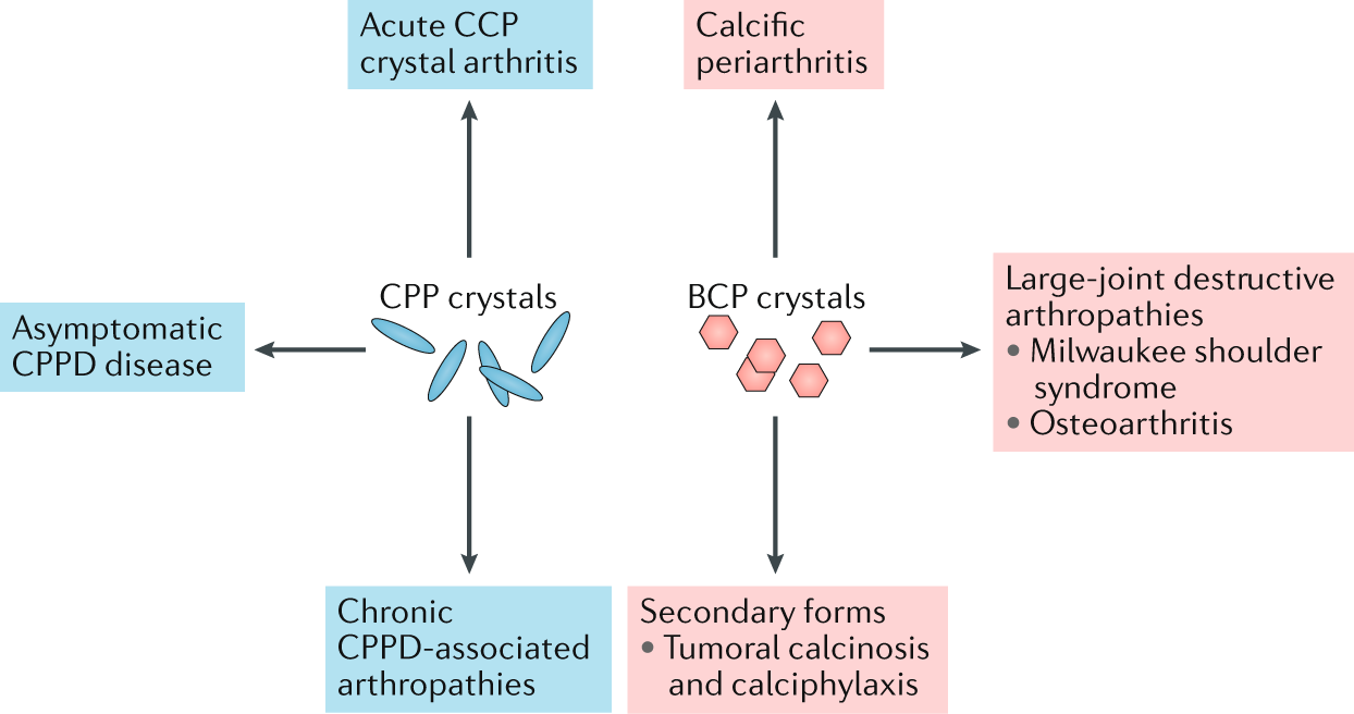 Calcium crystal deposition diseases — beyond gout | Nature