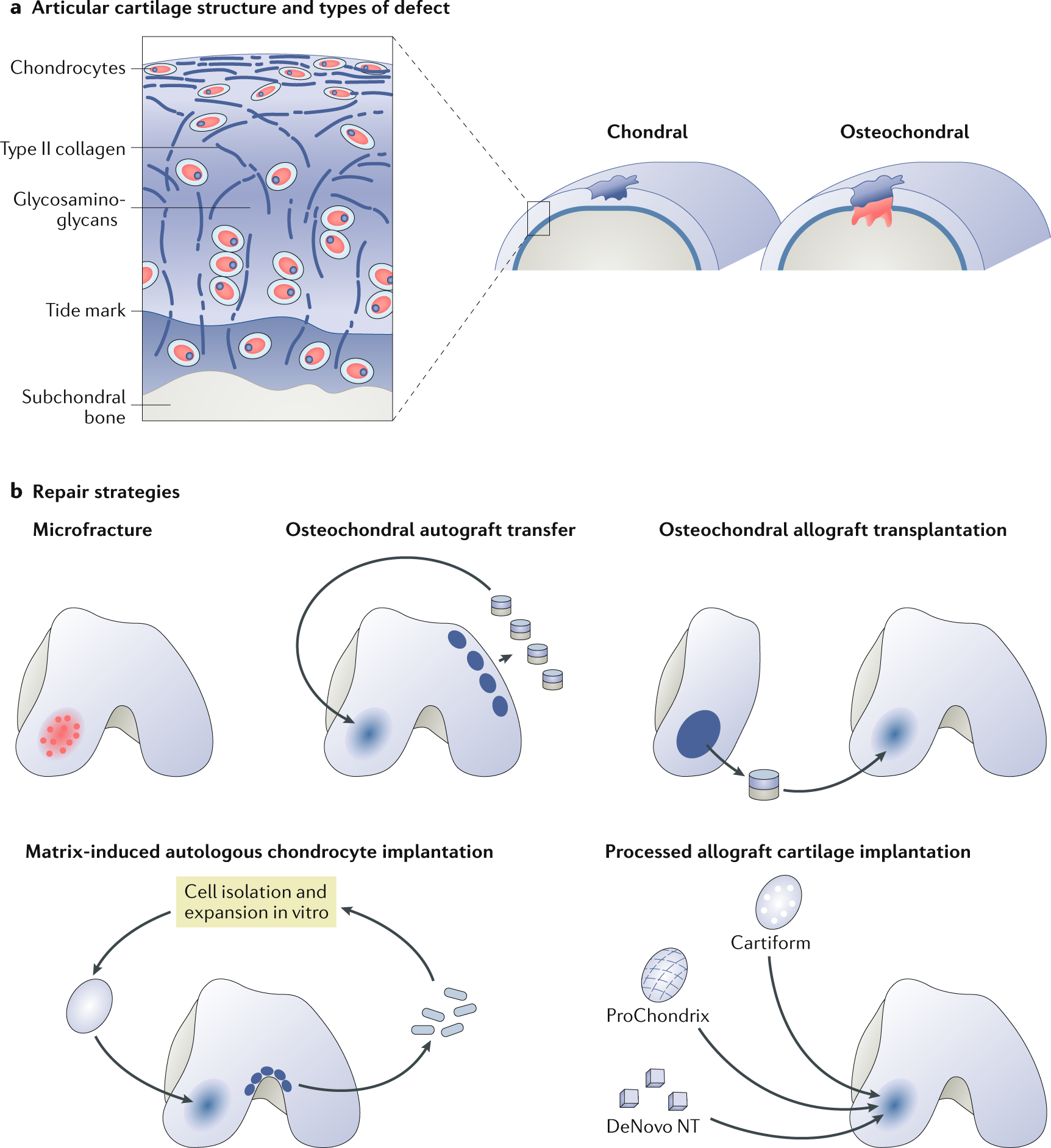 Surgical and tissue engineering strategies for articular cartilage