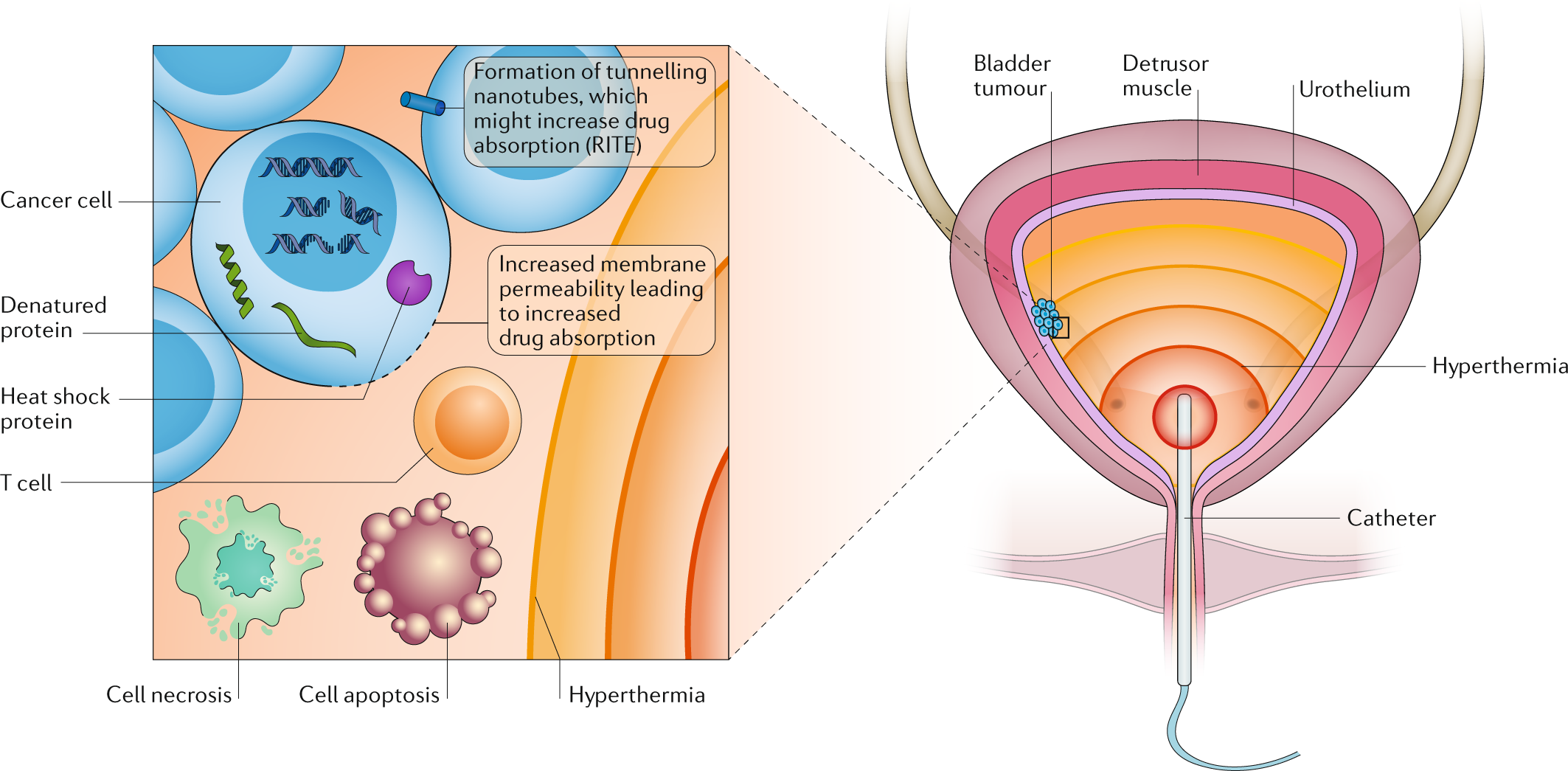 Intravesical Device Assisted Therapies For Non Muscle Invasive Mallory 685 Wiring Diagram Bladder Cancer Nature Reviews Urology