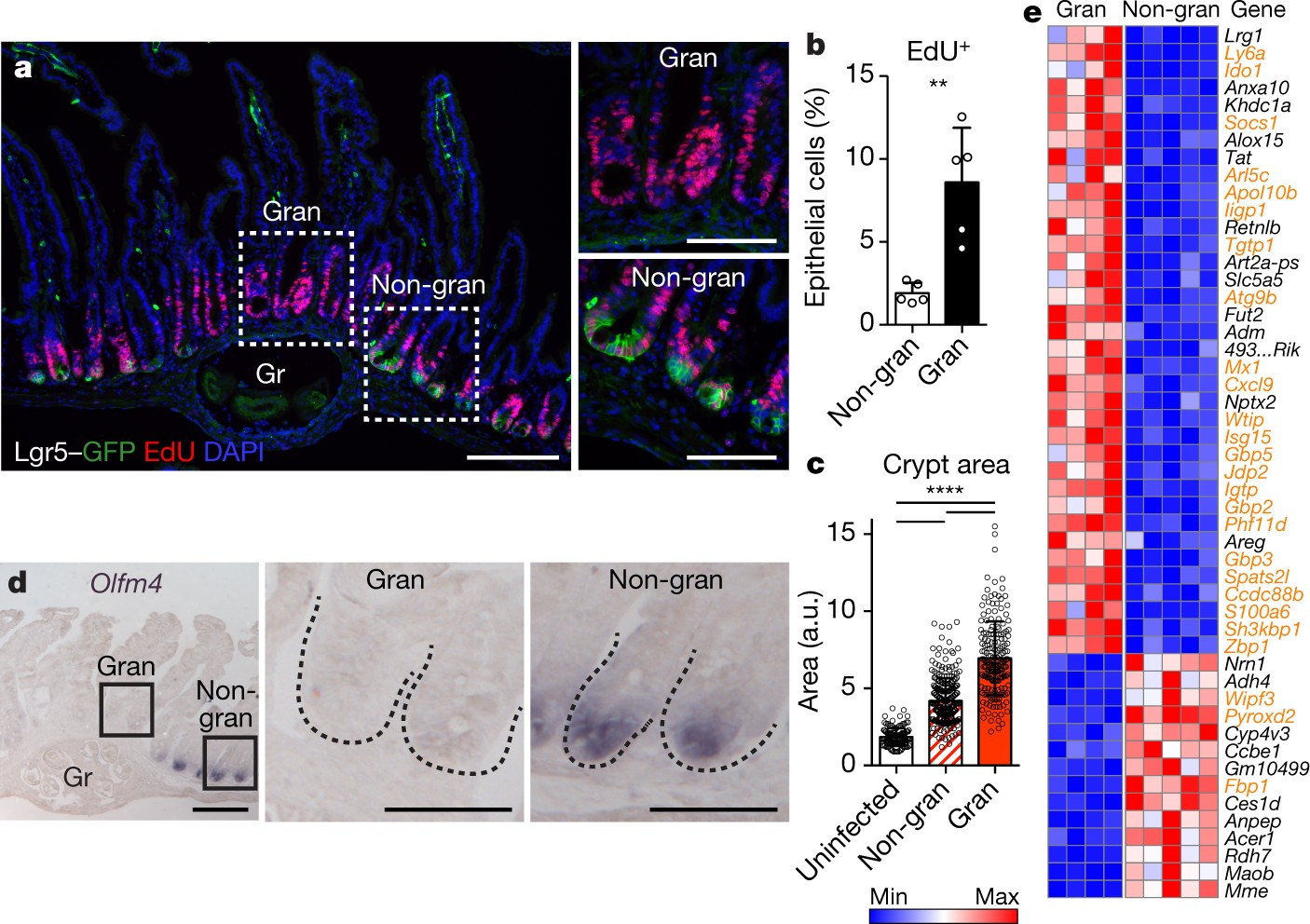 Parasitic helminths induce fetal-like reversion in the