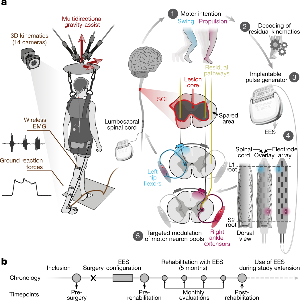 targeted neurotechnology restores walking in humans with spinal cord injury  | nature