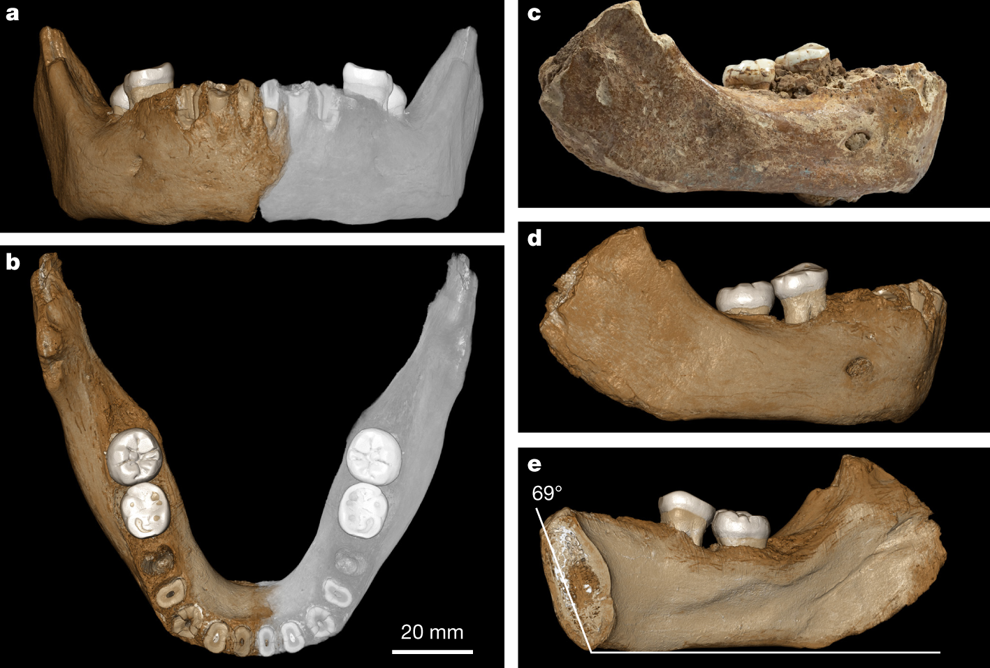 A late Middle Pleistocene Denisovan mandible from the