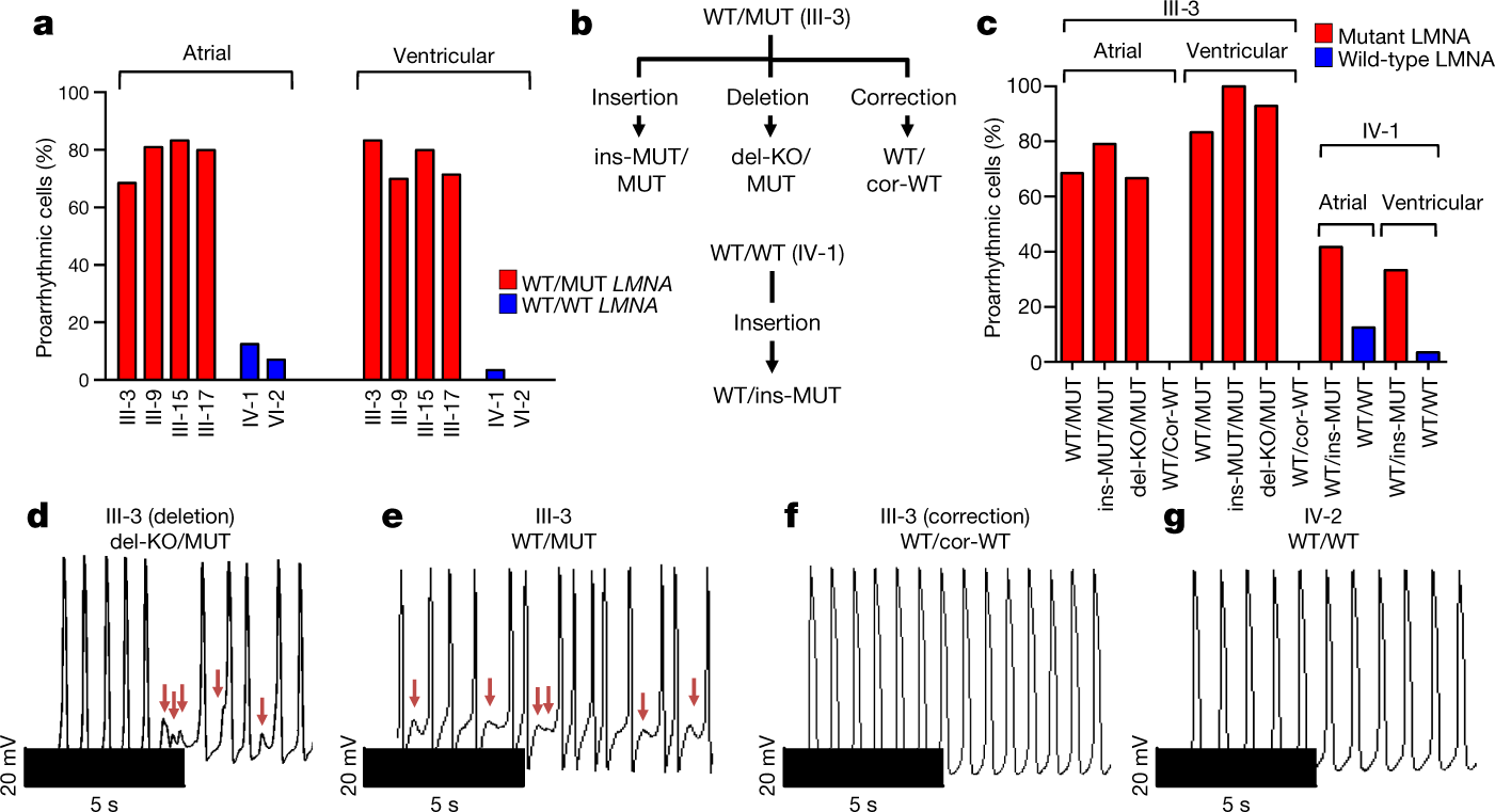 Activation of PDGF pathway links LMNA mutation to dilated