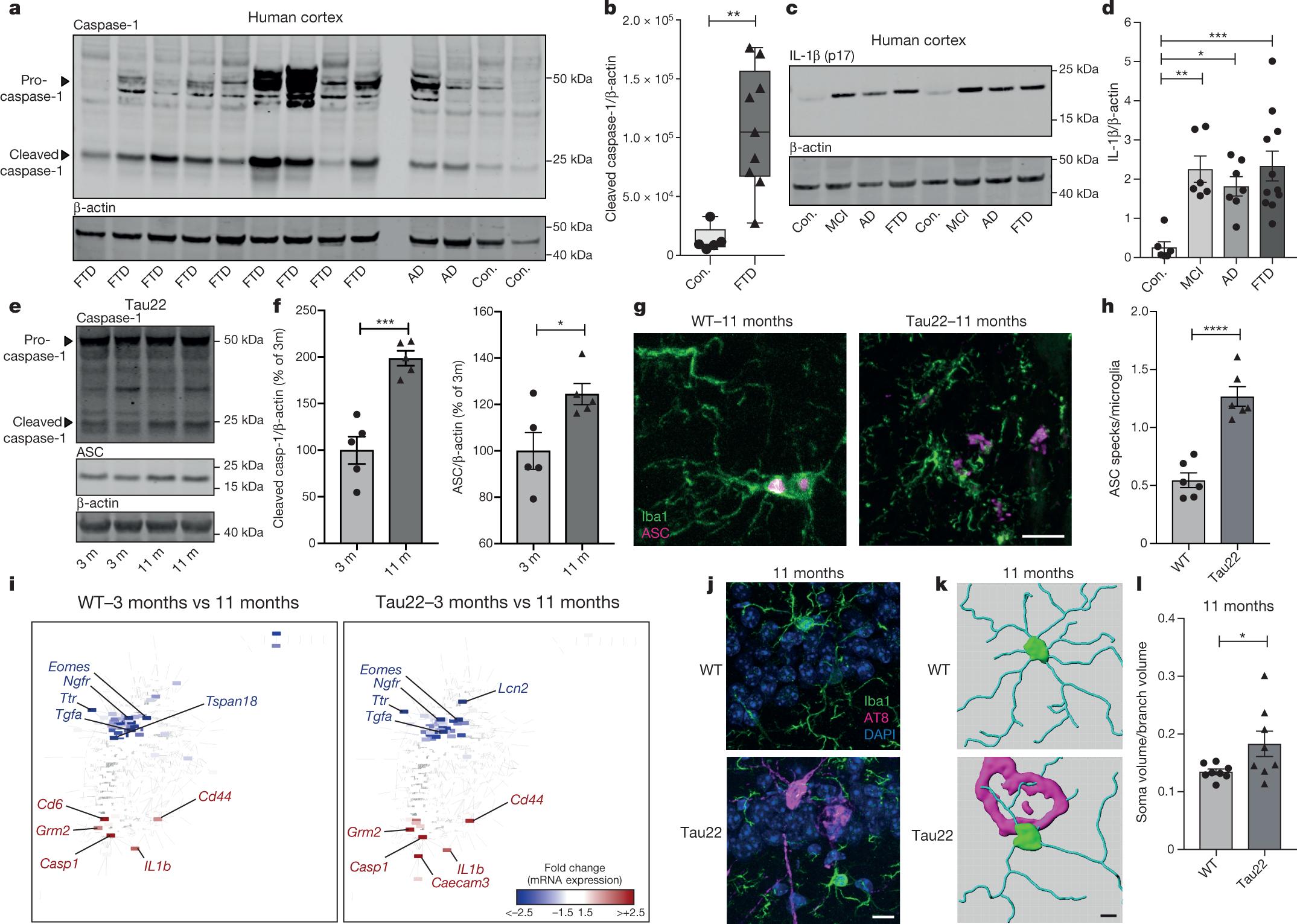 NLRP3 inflammasome activation drives tau pathology