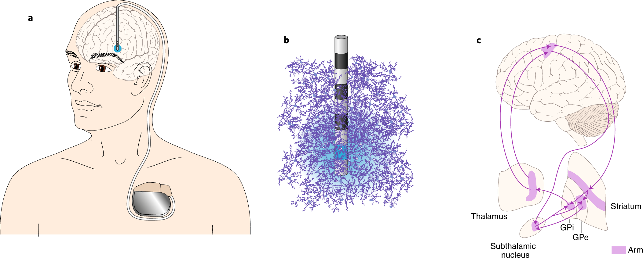 Emerging technologies for improved deep brain stimulation