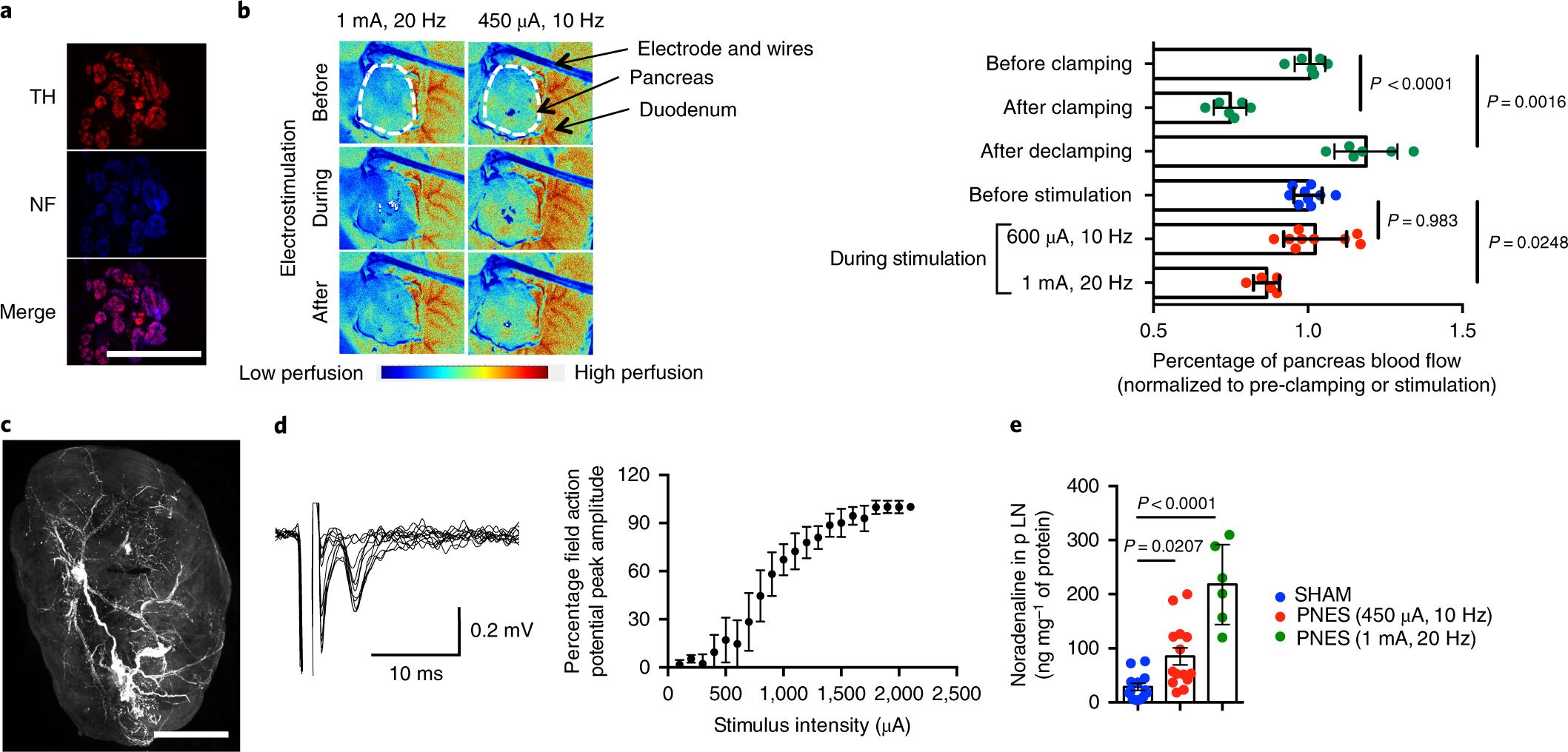 Pancreatic nerve electrostimulation inhibits recent-onset autoimmune d