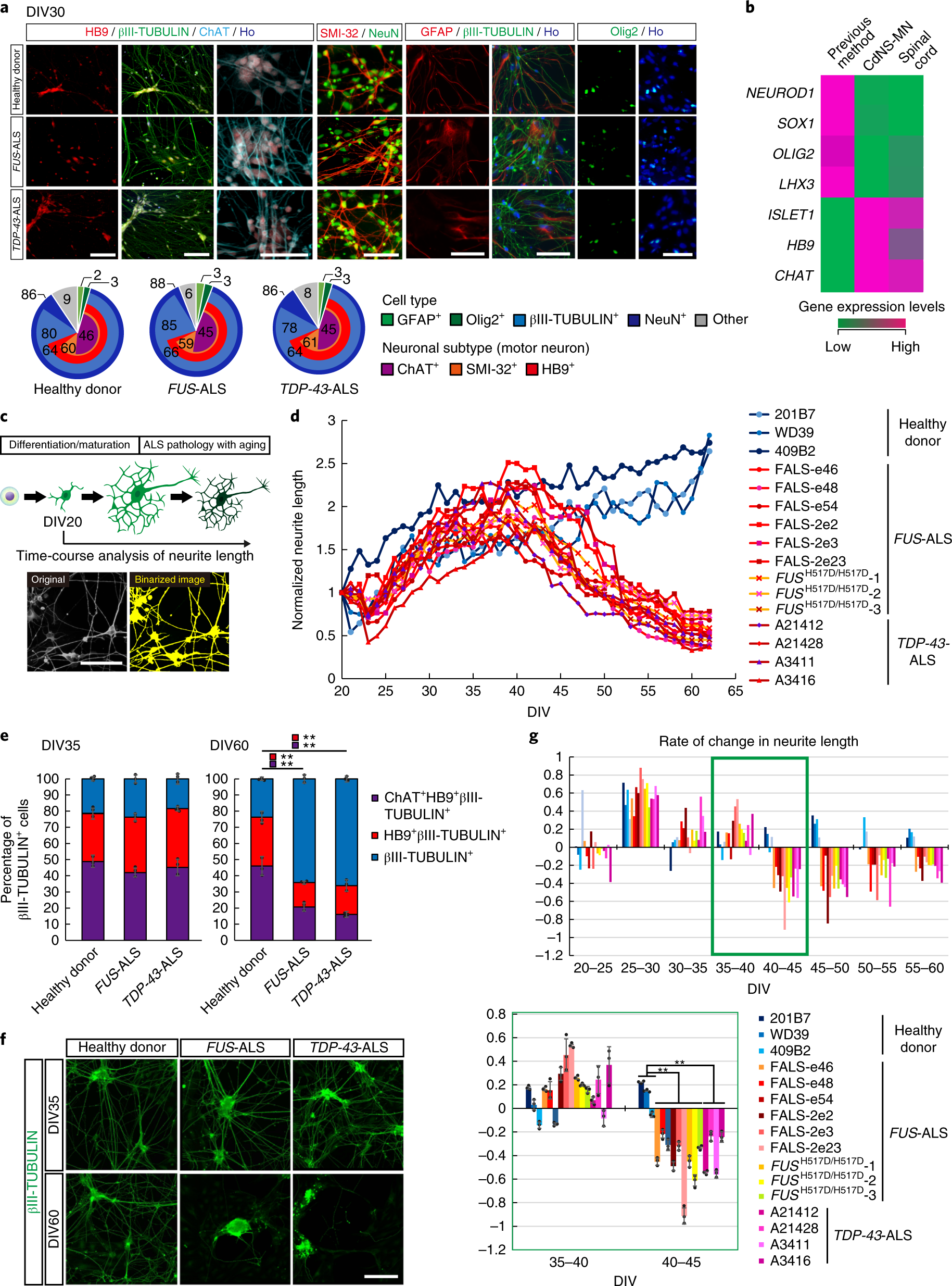 Research Identifies Complex Of Neurons >> Modeling Sporadic Als In Ipsc Derived Motor Neurons Identifies A