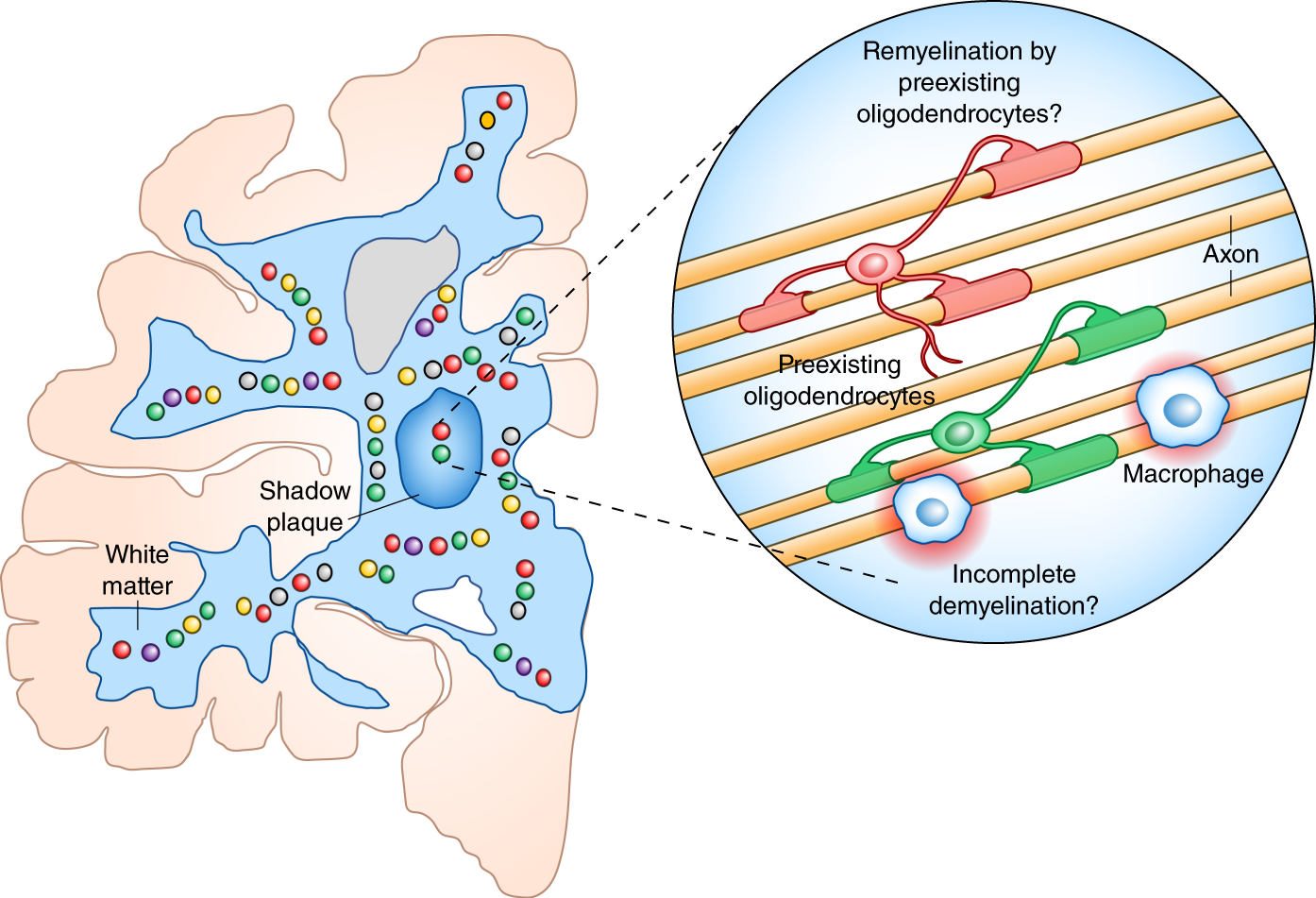 Time to revisit oligodendrocytes in multiple sclerosis