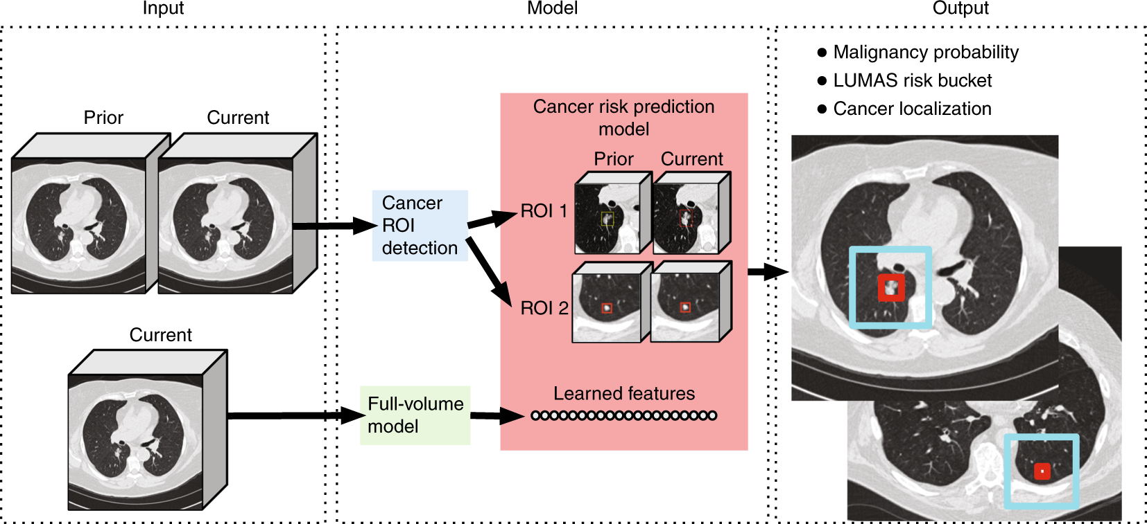 End-to-end lung cancer screening with three-dimensional deep