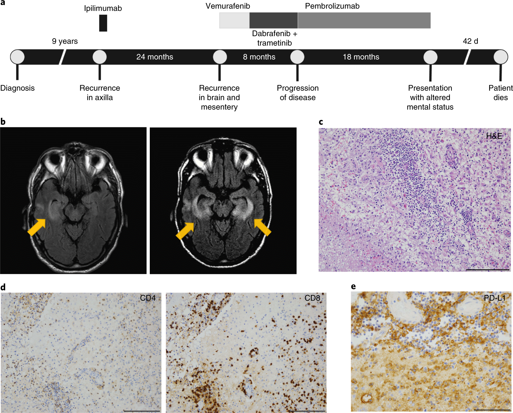A case report of clonal EBV-like memory CD4 + T cell