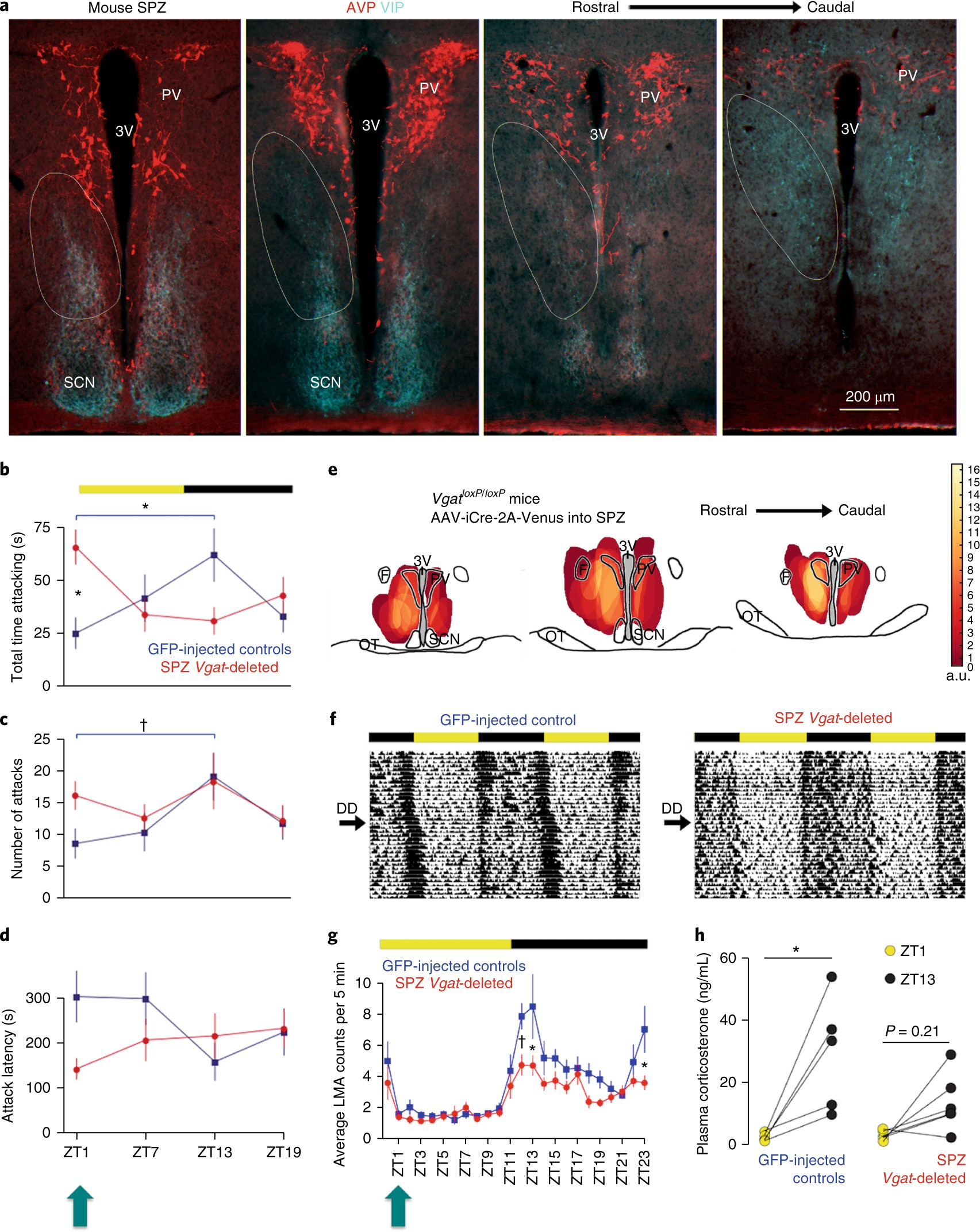 A hypothalamic circuit for the circadian control of aggression ...