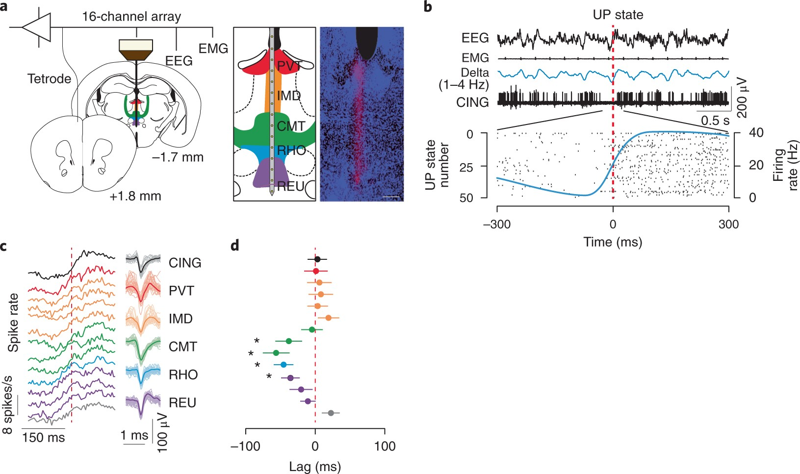 Thalamic Dual Control Of Sleep And Wakefulness Nature Neuroscience Counter Using 7 Segment Display Public Circuit Online