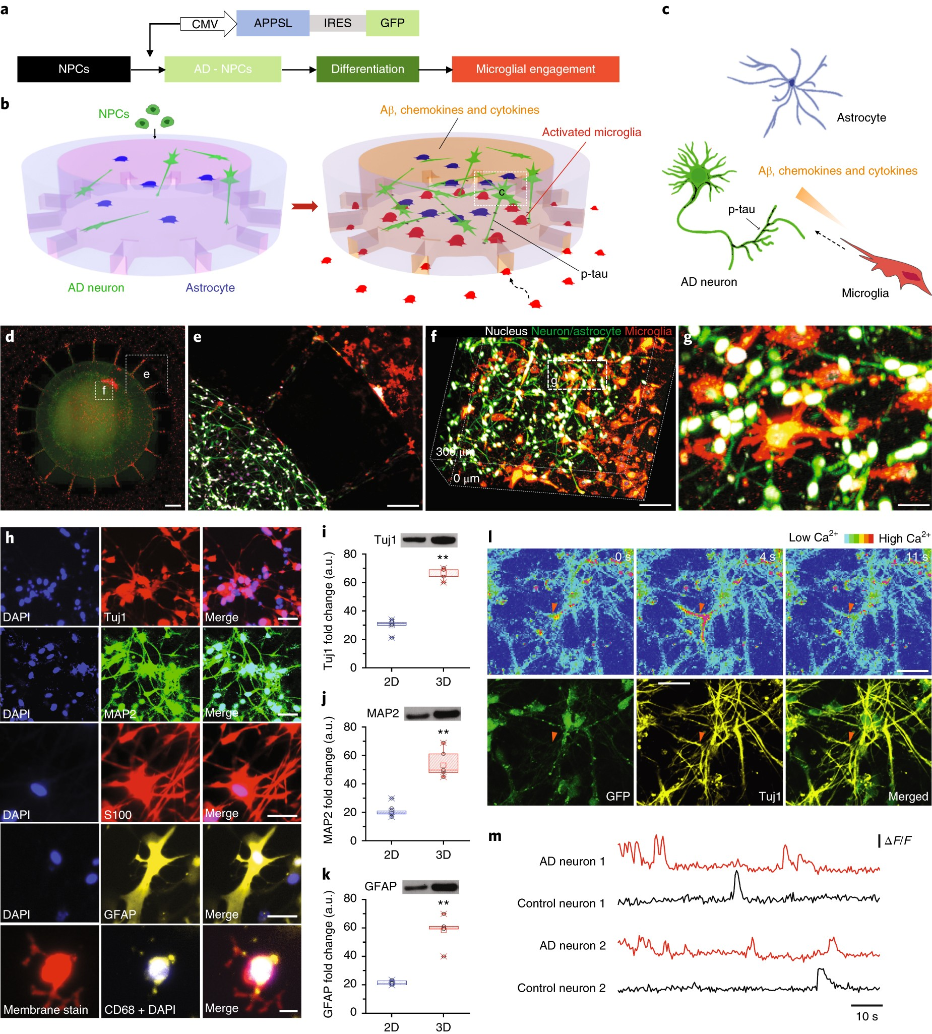 A 3d Human Triculture System Modeling Neurodegeneration And Gm 8 1l Vacuum Diagram Neuroinflammation In Alzheimers Disease Nature Neuroscience