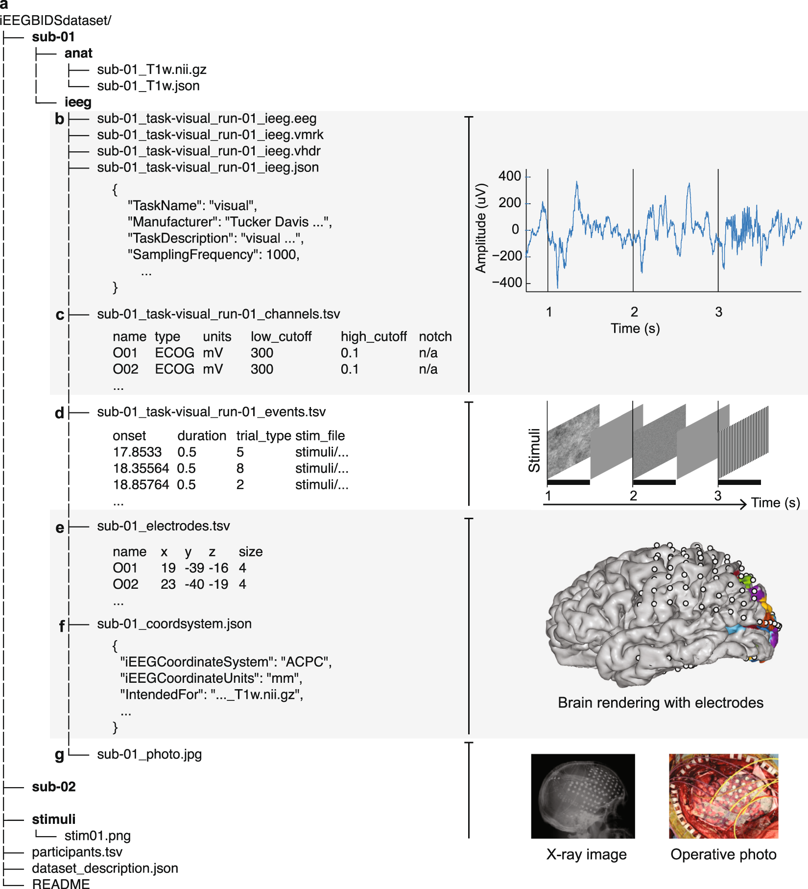 iEEG-BIDS, extending the Brain Imaging Data Structure specification to