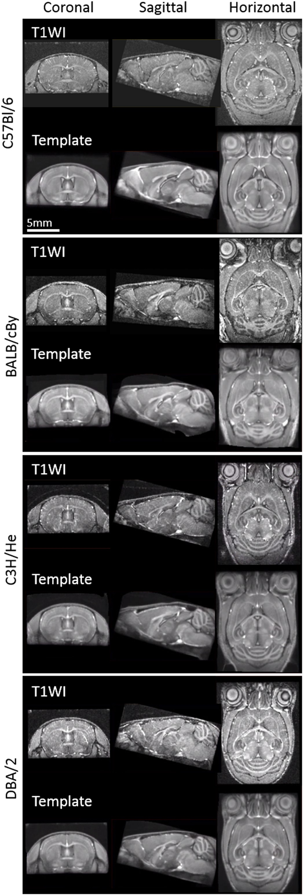 In vivo microscopic voxel-based morphometry with a brain template to ...