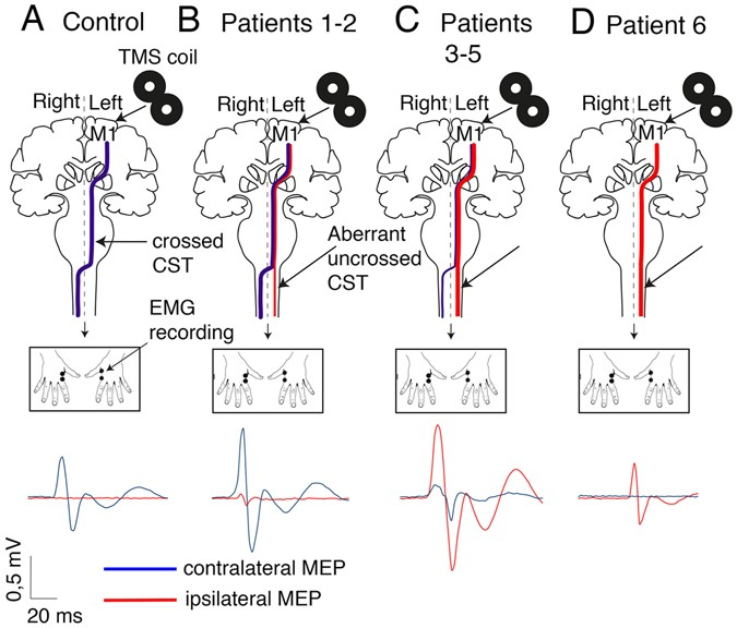 Non cell-autonomous role of DCC in the guidance of the corticospinal