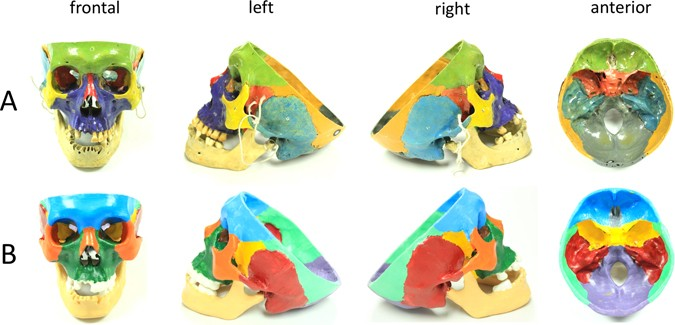 The role of three-dimensional printed models of skull in anatomy ...