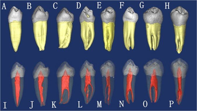 Root Anatomy And Canal Morphology Of Mandibular First Premolars In A