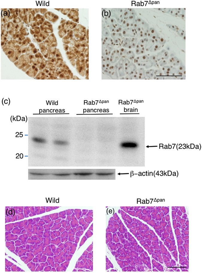 Disruption of Small GTPase Rab7 Exacerbates the Severity of Acute
