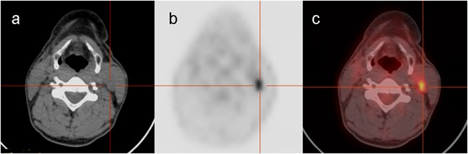 Diagnostic Performance Of 18 F Fdg Petct In Papillary Thyroid