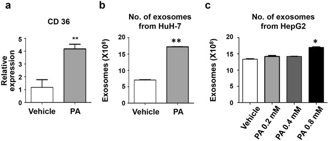 Exosomes derived from palmitic acid-treated hepatocytes