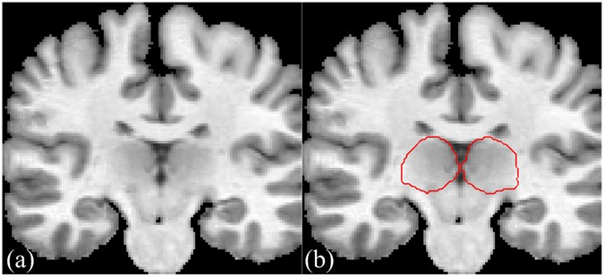 Automatic Thalamus Segmentation from Magnetic Resonance Images Using