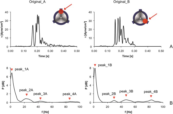 ce1e8524a544 (A) Hemodynamic shear stress profiles characteristics of the trileaflet PHV  are shown in the time-domain  the two curves