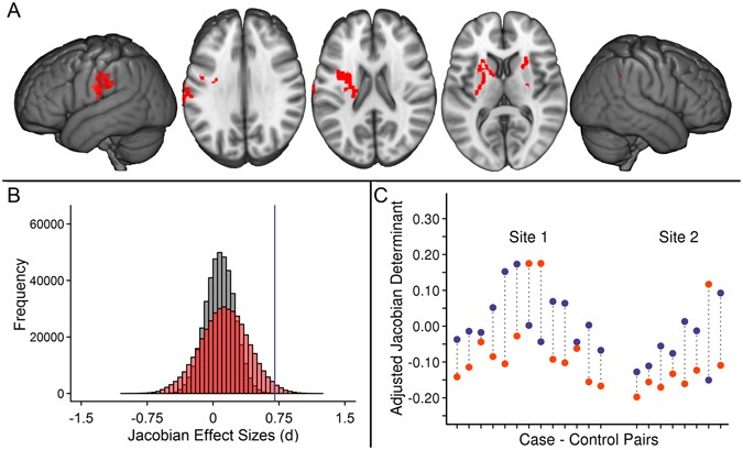 Resilient Dyslexics Have More Gray >> Common Brain Structure Findings Across Children With Varied Reading
