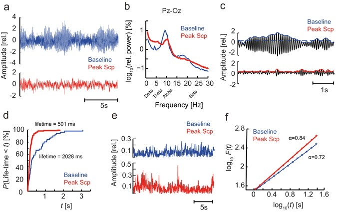 EEG machine learning for accurate detection of cholinergic