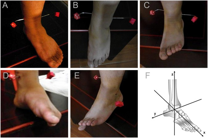 Shapes Of Distal Tibiofibular Syndesmosis Are Associated With Risk
