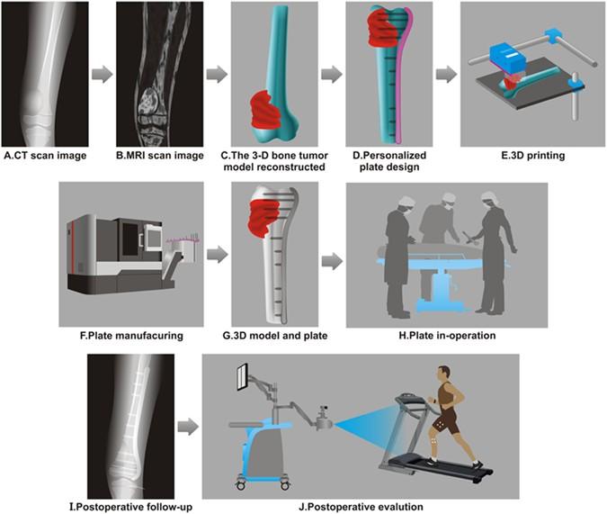 3D printed personalized titanium plates improve clinical