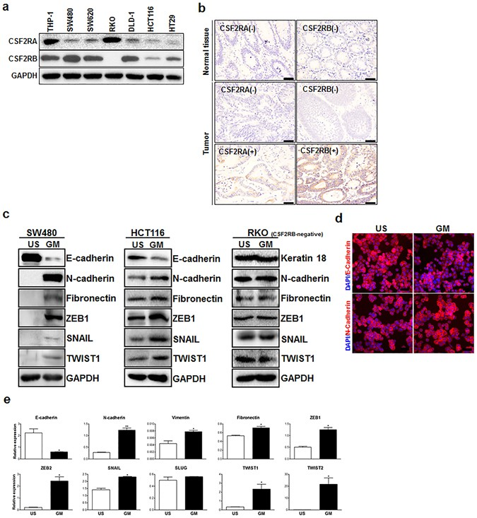 An epithelial-to-mesenchymal transition-inducing potential