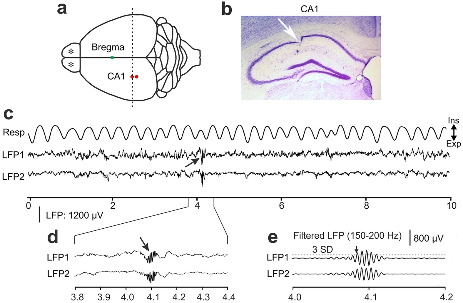 Hippocampal Sharp Wave Ripples In Awake Mice Are Entrained By Incandescent Light Bulb Diagram Shows 11 Parts Respiration Scientific Reports
