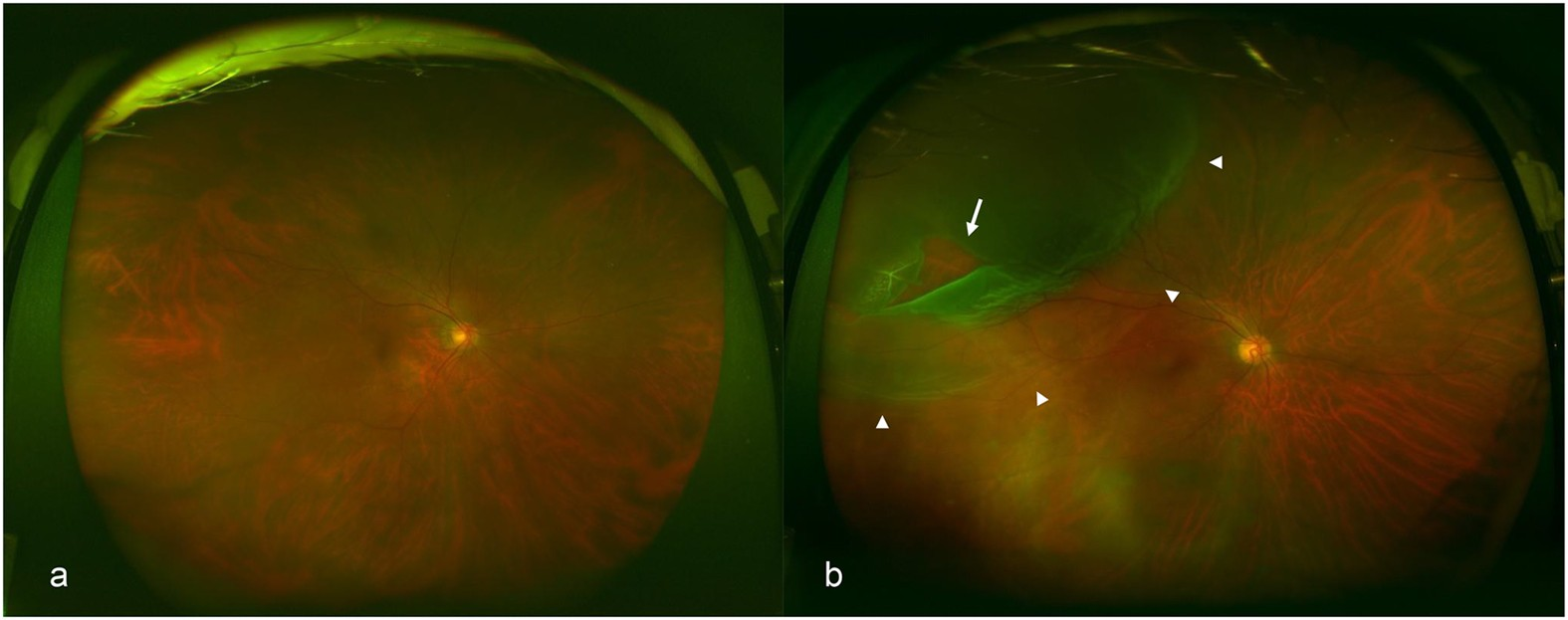 Accuracy Of Deep Learning A Machine Technology Using Ultra Wide Field Fundus Ophthalmoscopy For Detecting Rhegmatogenous Retinal Detachment