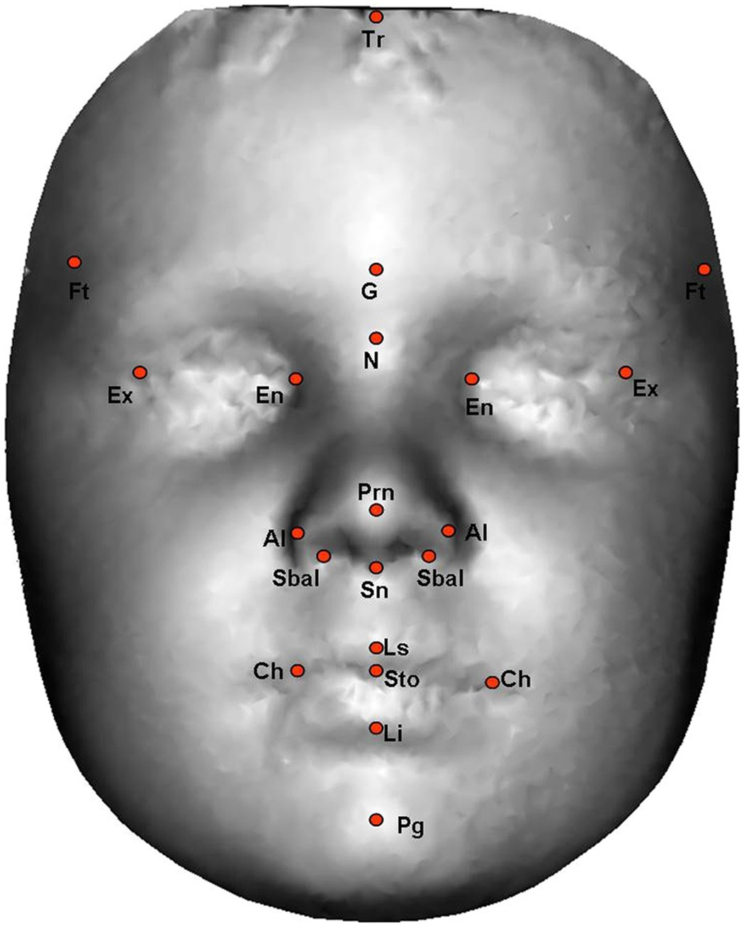 Genetics Plays Outsized Role In Autism >> Hypermasculinised Facial Morphology In Boys And Girls With Autism