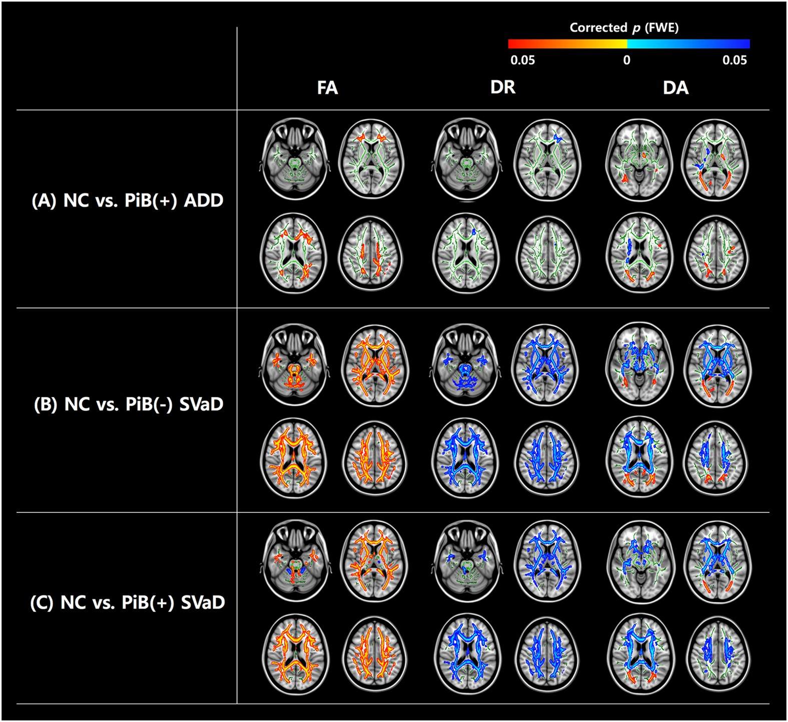 Correlations Between Gray Matter And White Matter Degeneration In