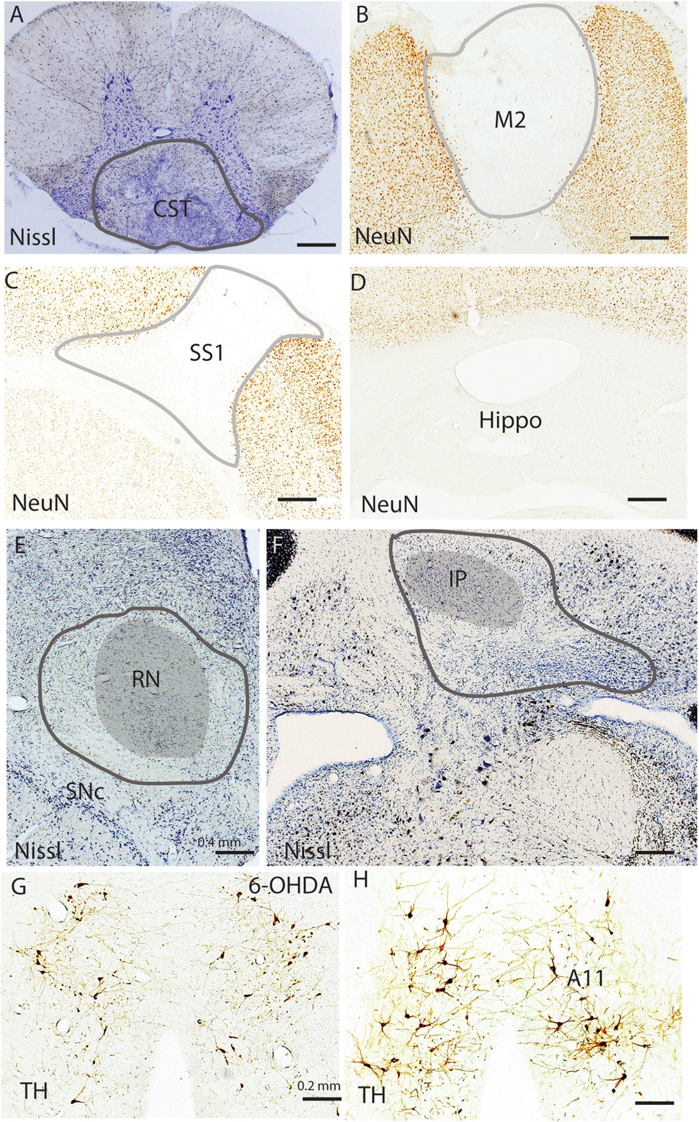 Targeted Disruption Of Supraspinal Motor Circuitry Reveals A Between Unilateral Circuits And Bilateral Its Functions Distributed Network Underlying Restless Legs Syndrome Rls Like Movements In The Rat