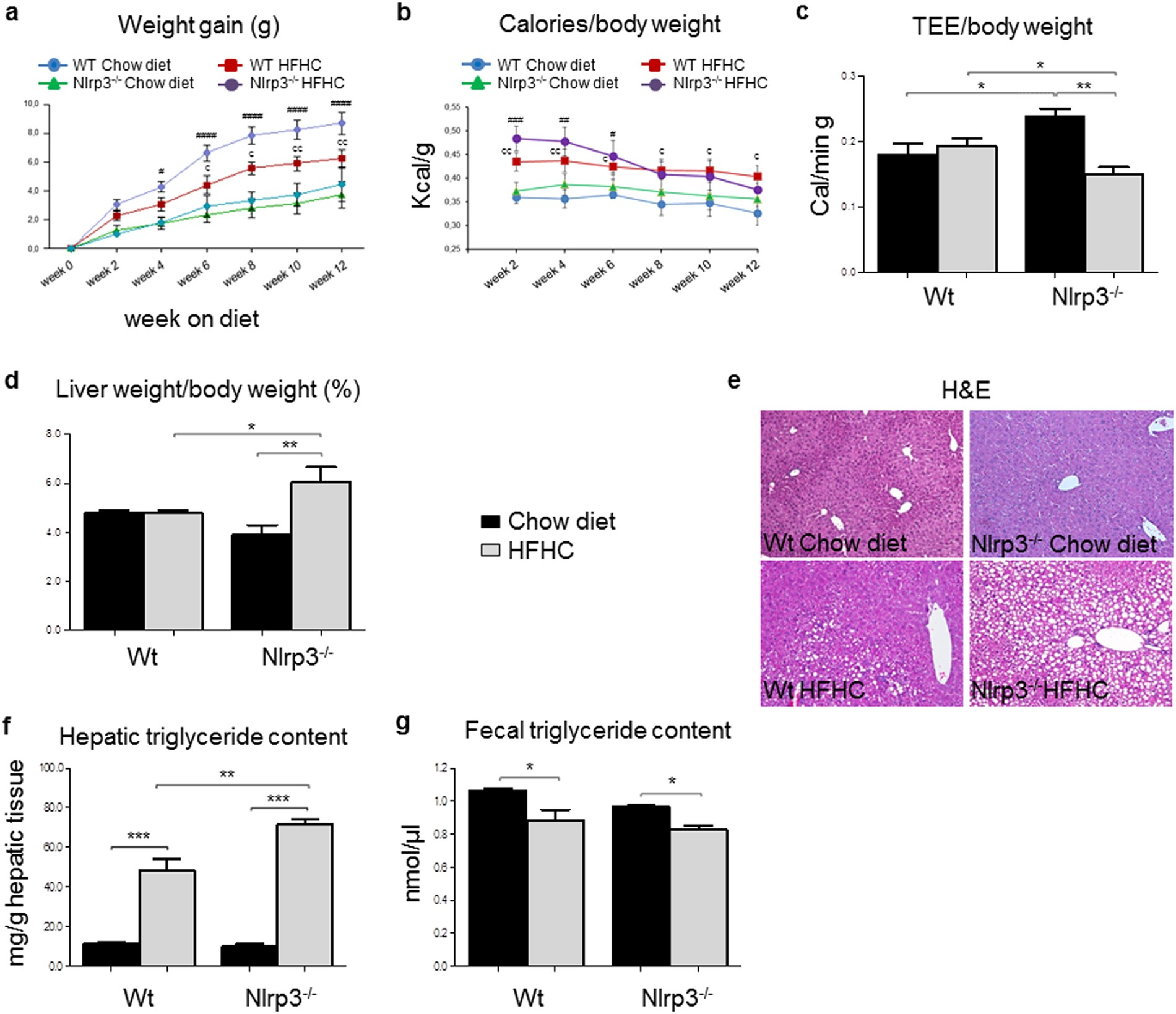 Lack of NLRP3 inflammasome leads to gut liver axis derangement gut