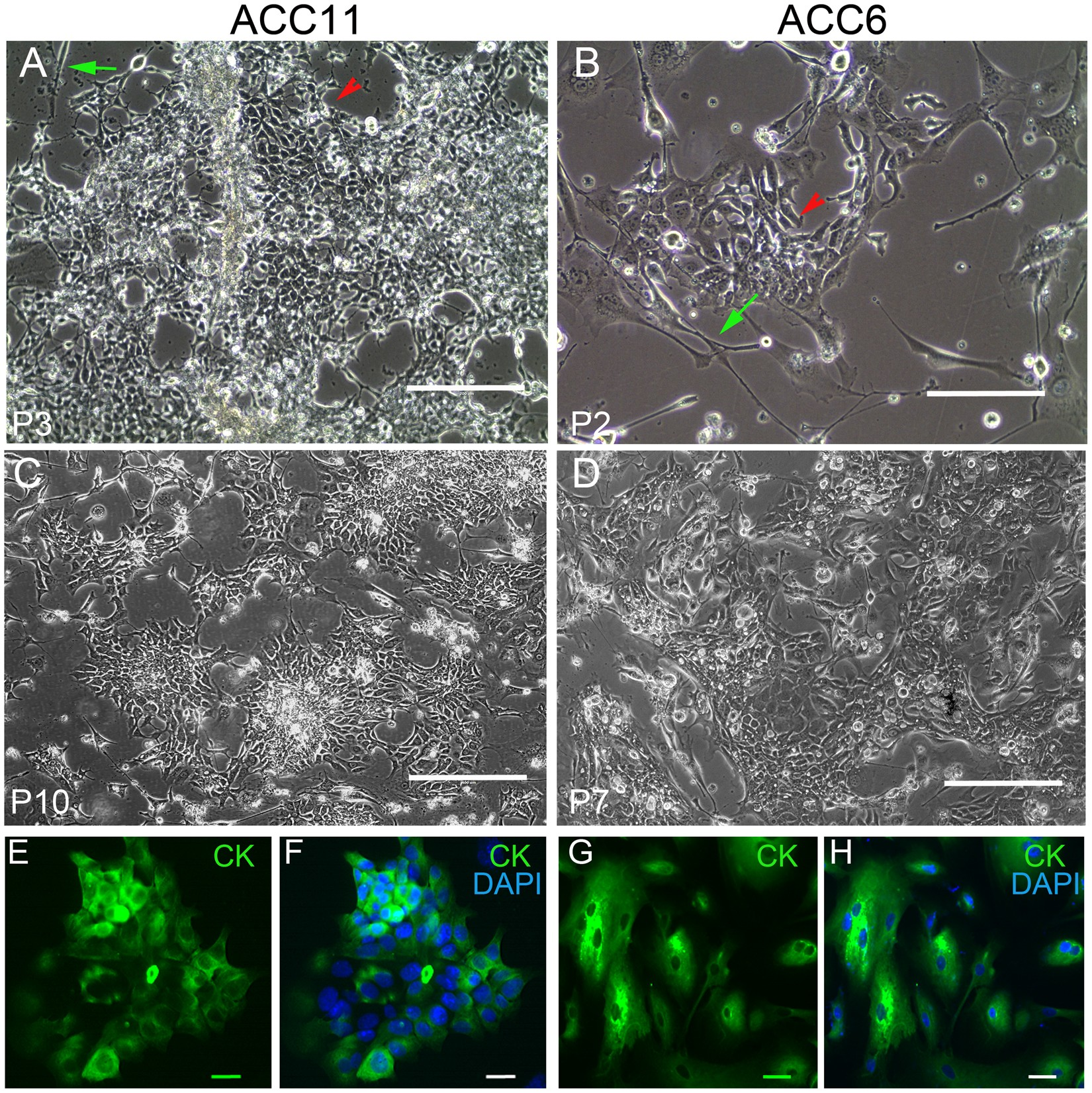 A multiplex preclinical model for adenoid cystic carcinoma
