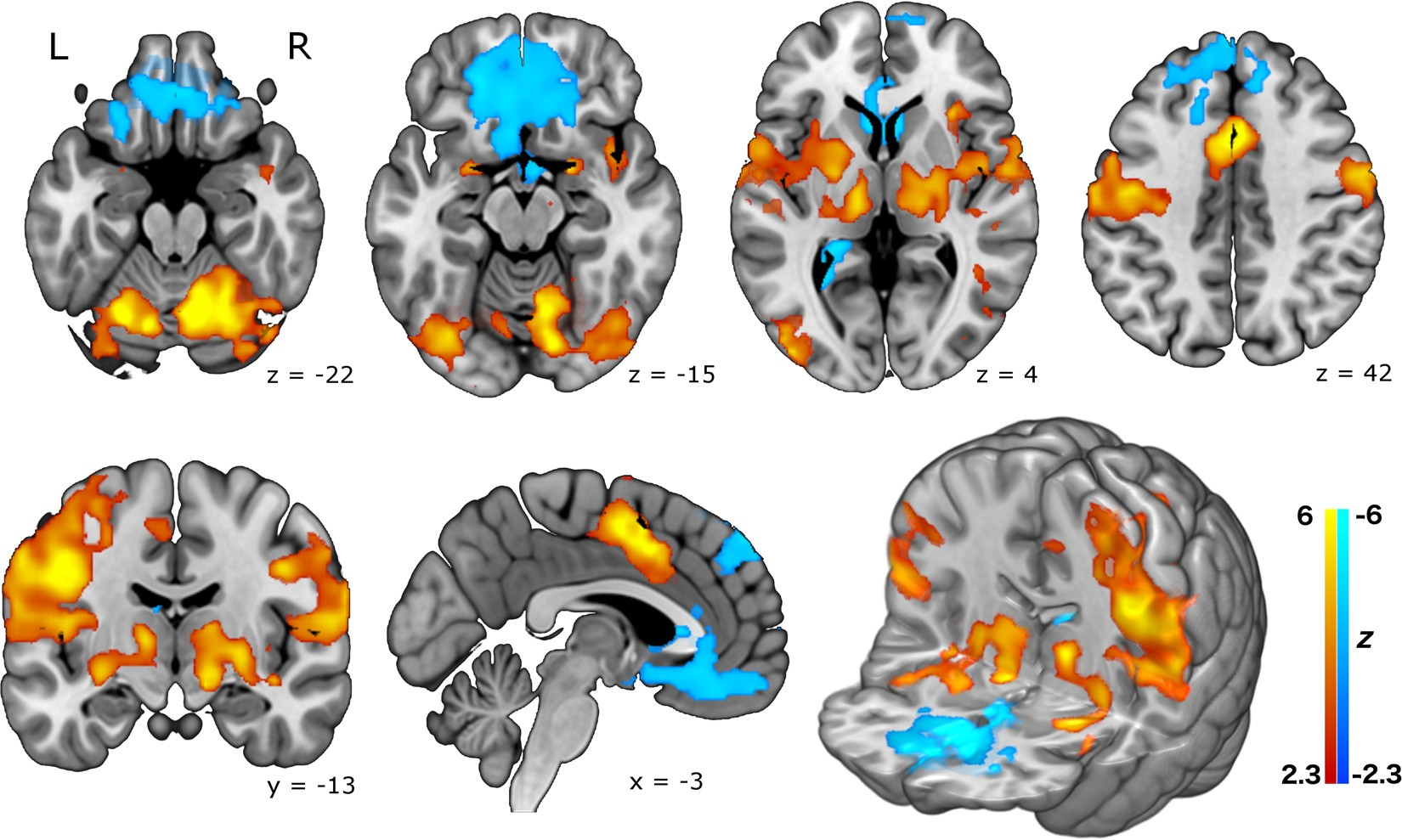 Investigating The Neural Correlates Of Smoking Feasibility And 99 Electronic Toolbox 10 Combines Results Combining Cigarettes With Fmri Scientific Reports