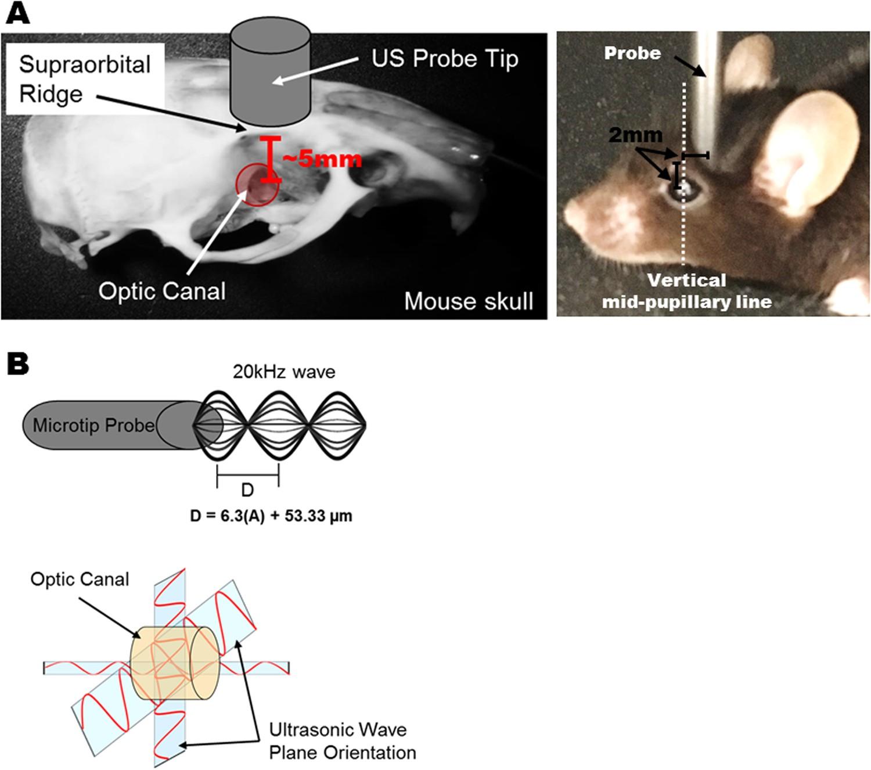 A Novel Mouse Model of Traumatic Optic Neuropathy Using External ...