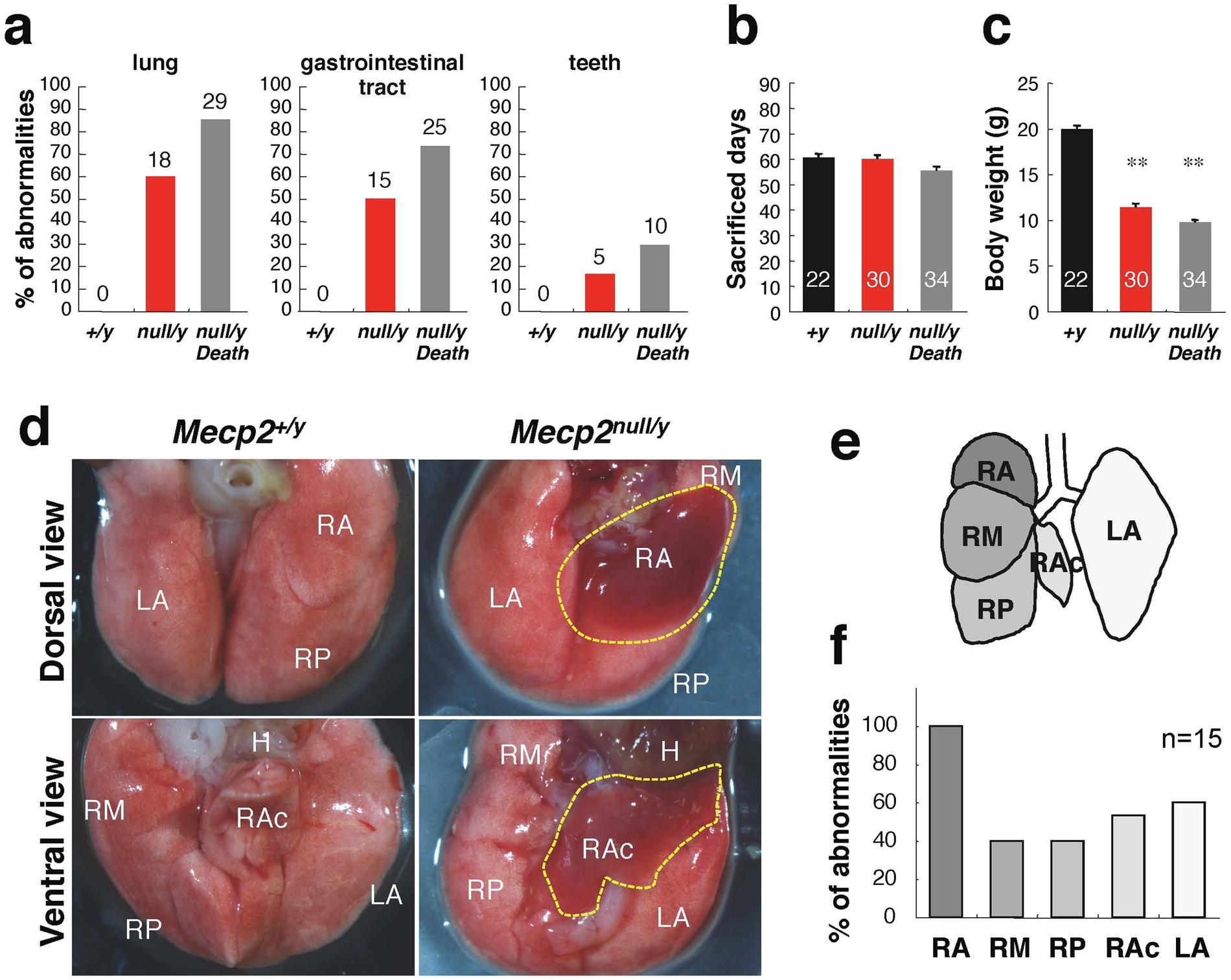 Pathogenesis of Lethal Aspiration Pneumonia in Mecp2 -null