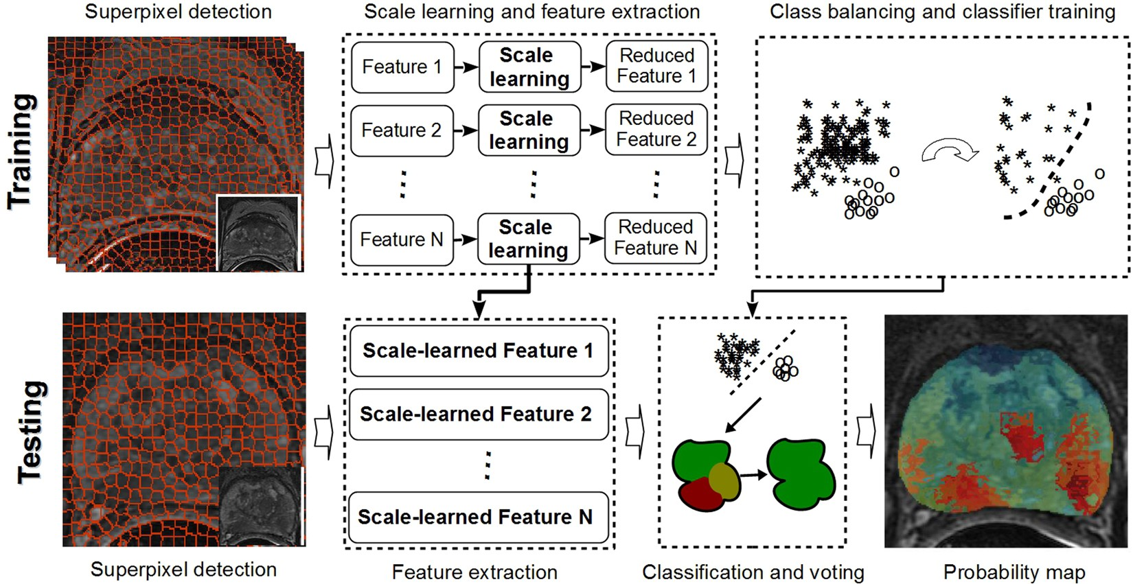 Discriminative Scale Learning (DiScrn): Applications to Prostate Cancer  Detection from MRI and Needle Biopsies | Scientific Reports