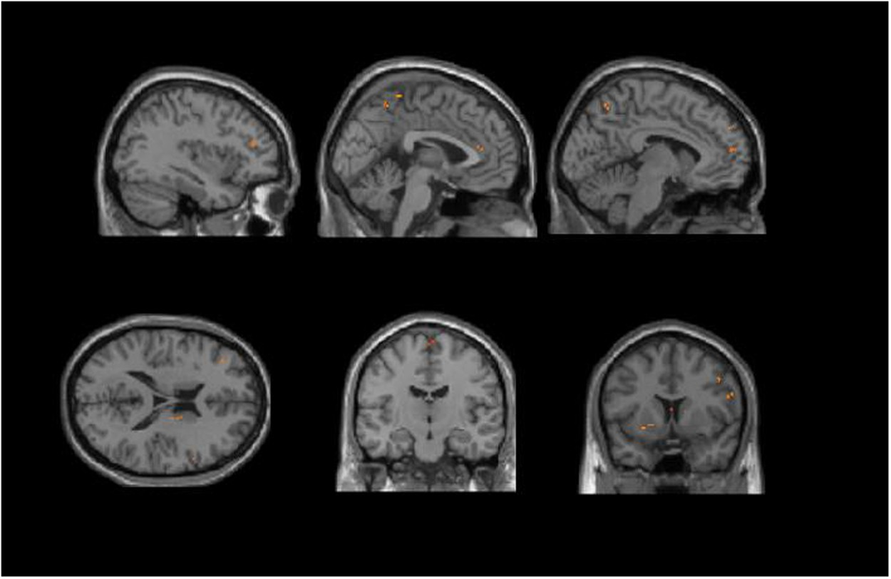 A Study of the Brain Abnormalities of Post-Stroke Depression in ...