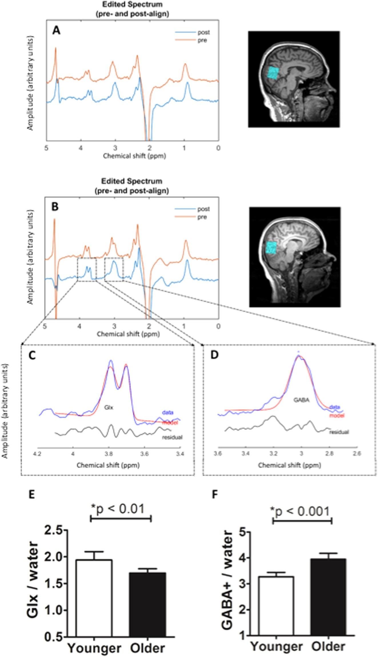Occipital GABA levels in older adults and their relationship to visual  perceptual suppression | Scientific Reports