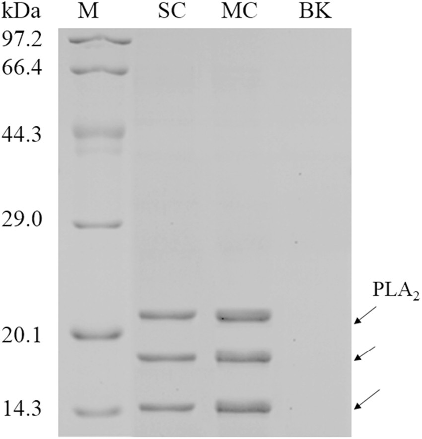 Identification of novel factors enhancing recombinant protein production in multi-copy Komagataella phaffii based on transcriptomic analysis of ...