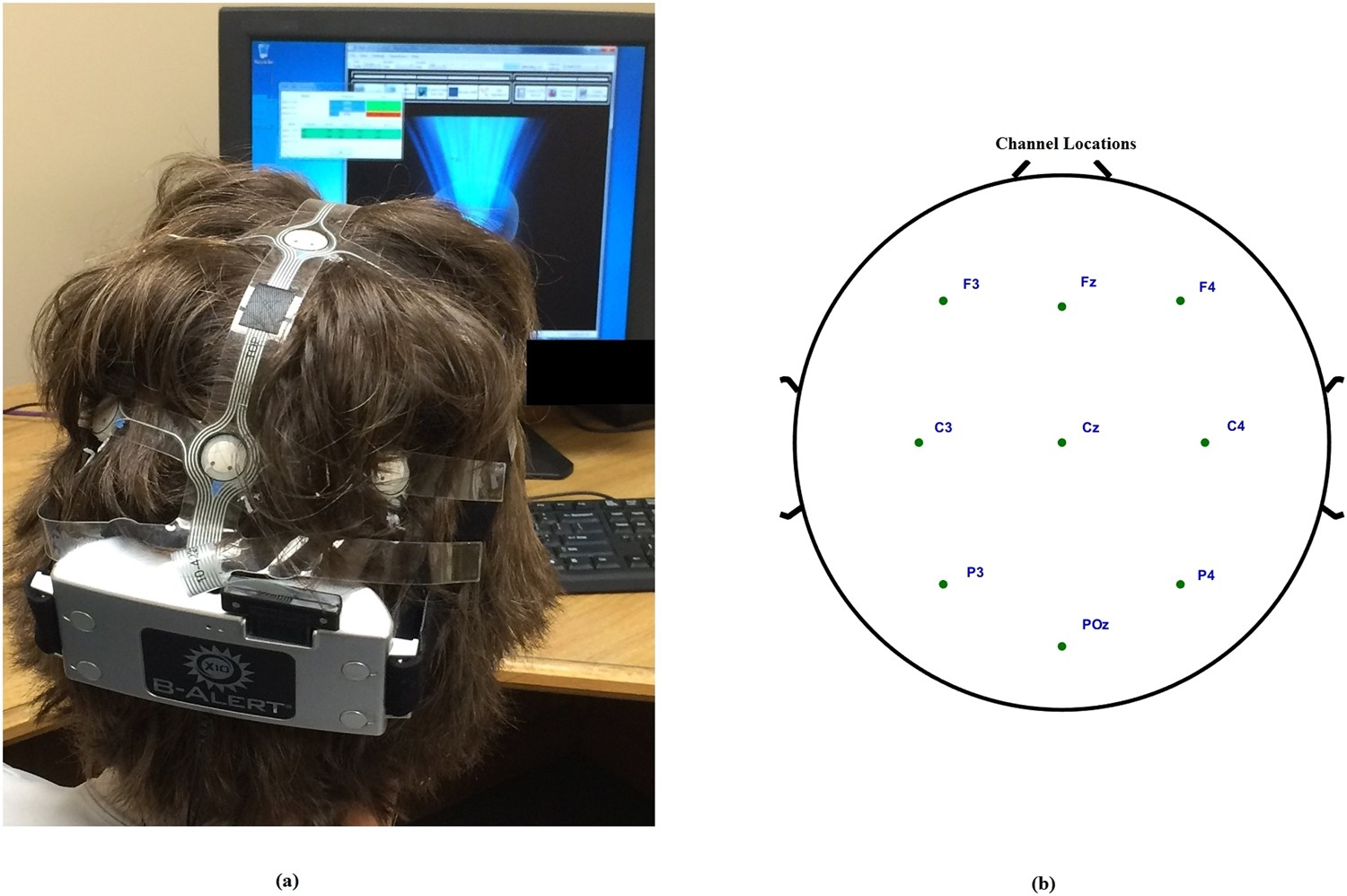 A Novel EEG Based Spectral Analysis of Persistent Brain Function