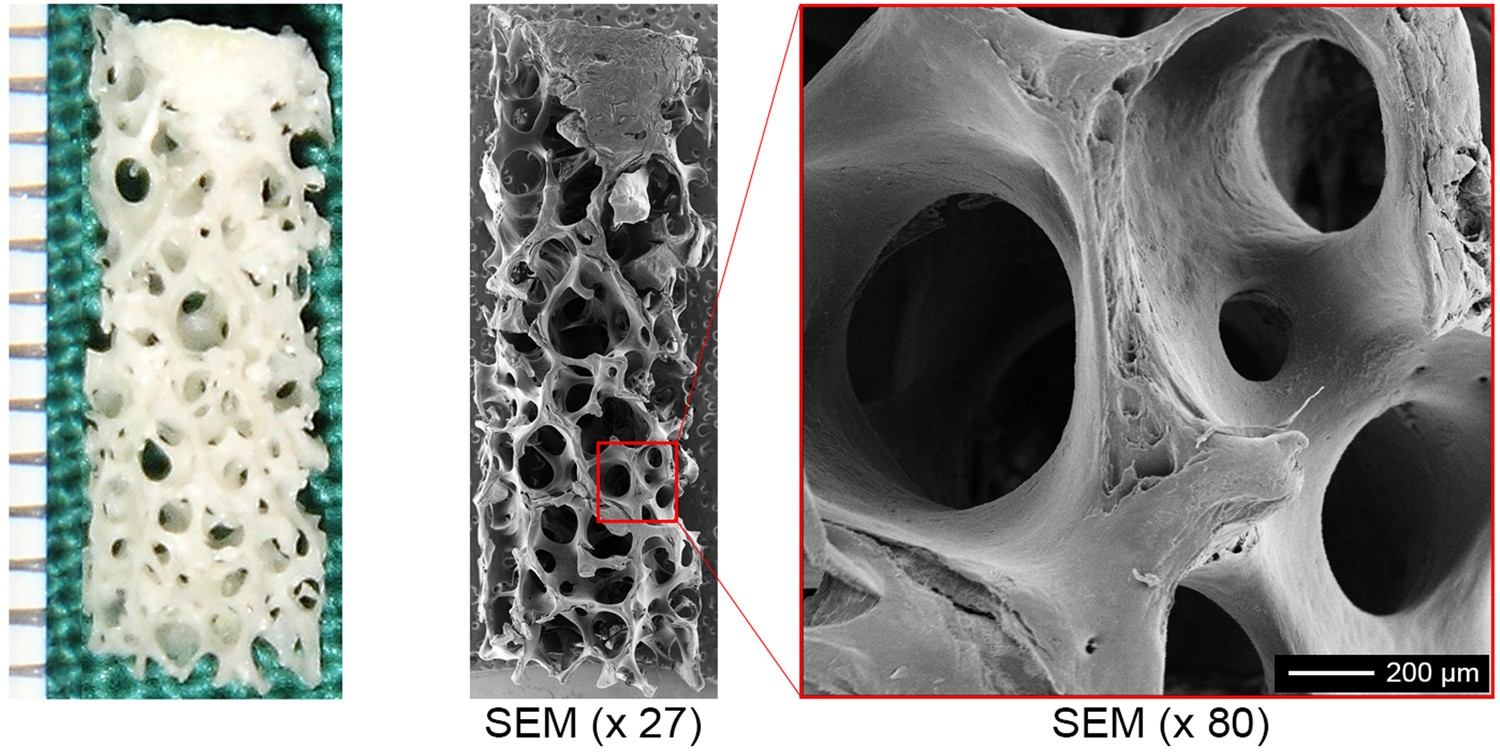Prefabrication Of A Functional Bone Graft With A Pedicled Periosteal